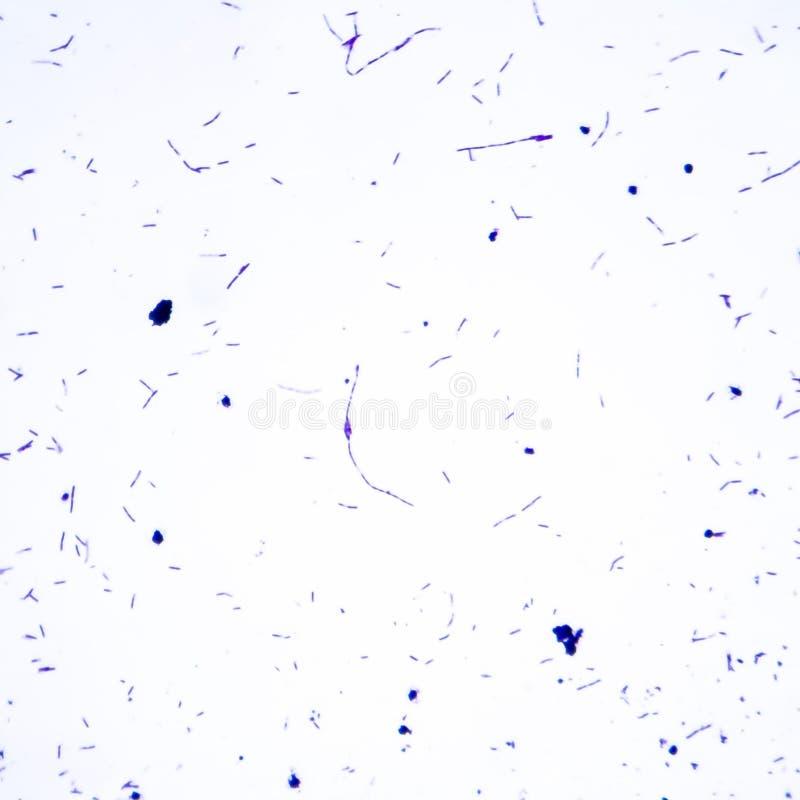 Micrographe léger de bacillus anthracis de bactéries image stock