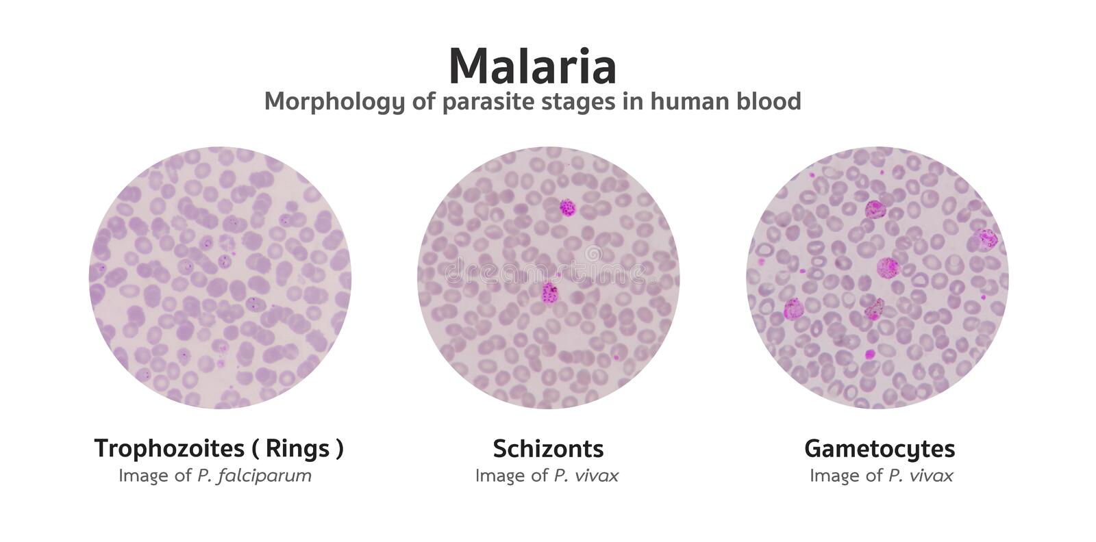 Microscopic examination of blood films from malaria infected pat stock illustration