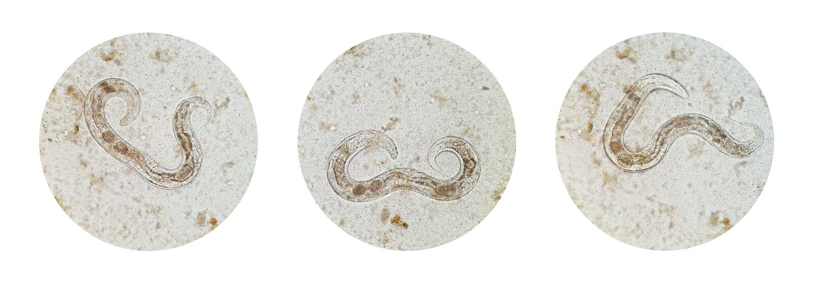 Microscopic view collection of adult free-living female Strongyloides stercoralis, a human pathogenic parasitic roundworm causing. The disease strongyloidiasis stock images