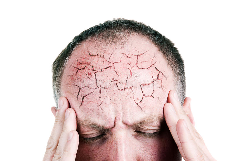 Mid aged man suffering from headache royalty free stock photography