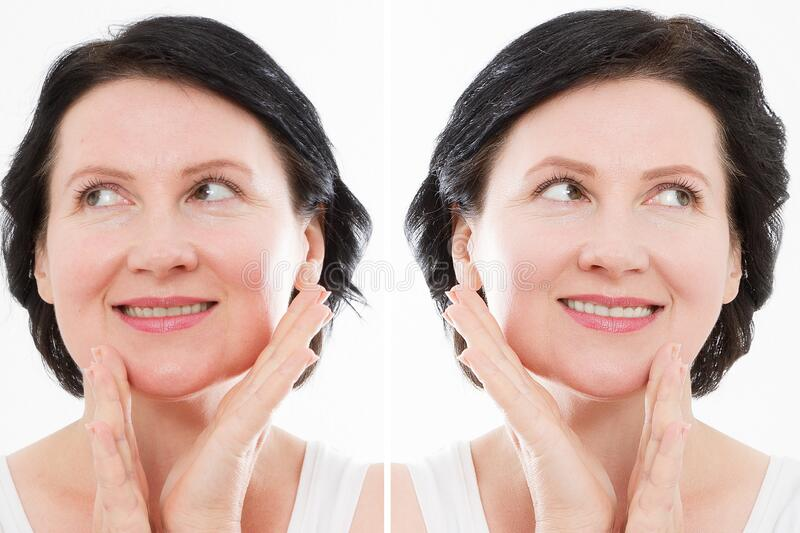 Middle age close up woman happy face before after cosmetic procedures. Skin care for wrinkled face. Before-after anti-aging royalty free stock image