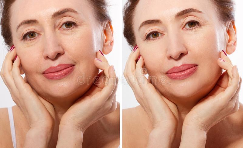 Middle age close up woman happy face before after cosmetic procedures. Skin care for wrinkled face. Before-after anti-aging royalty free stock photography