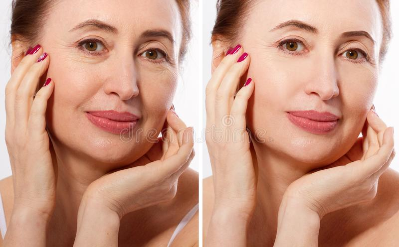Middle age close up woman happy face before after cosmetic procedures. Skin care for wrinkled face. Before-after anti-aging royalty free stock images
