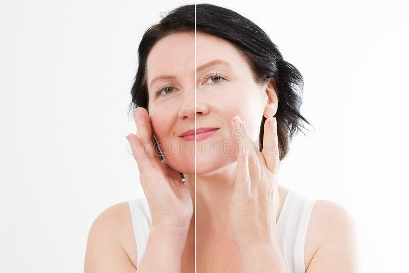Middle age close up woman happy face before after cosmetic procedures. Skin care for wrinkled face. Before-after anti-aging stock photo