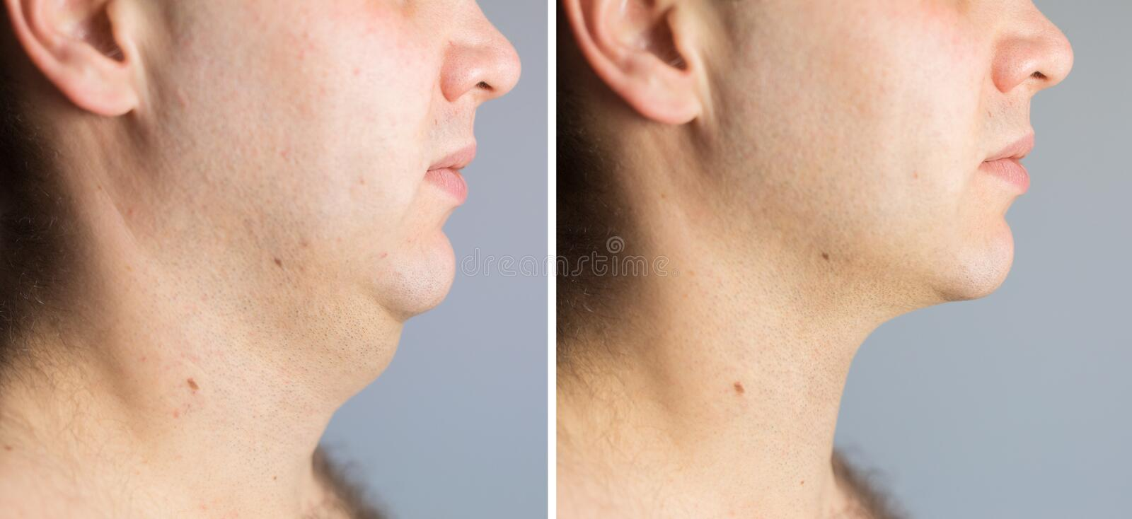 Man before and after double chin fat correction procedure royalty free stock images