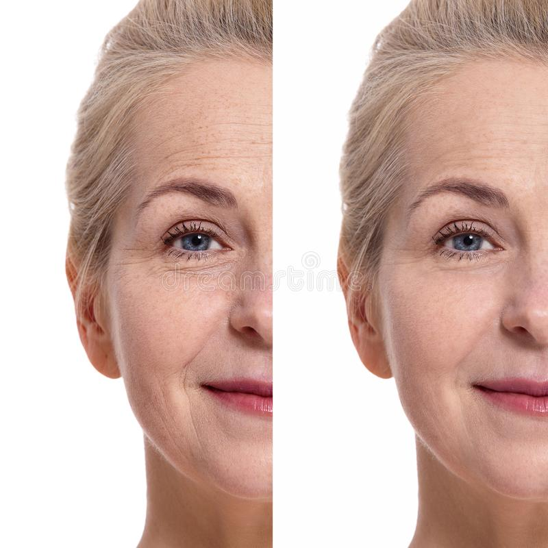 Middle aged oman face before and after cosmetic procedure. Plastic surgery concept. Woman face before and after cosmetic procedure. Plastic surgery concept royalty free stock photos