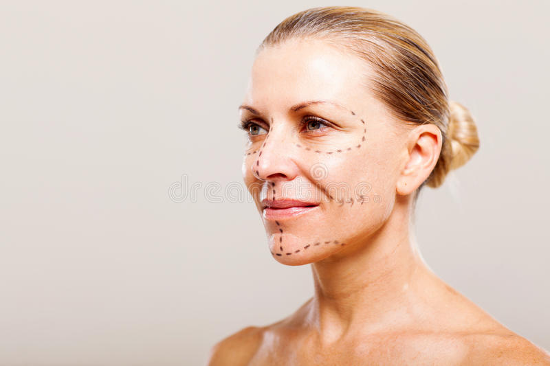 Middle Aged Plastic Surgery Royalty Free Stock Image