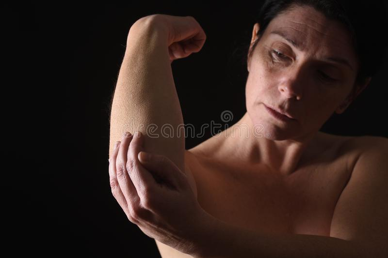 Middle-aged woman with shoulder pain stock photography