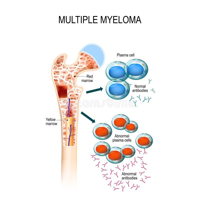Mieloma multiplo mieloma delle cellule di plasma illustrazione di stock