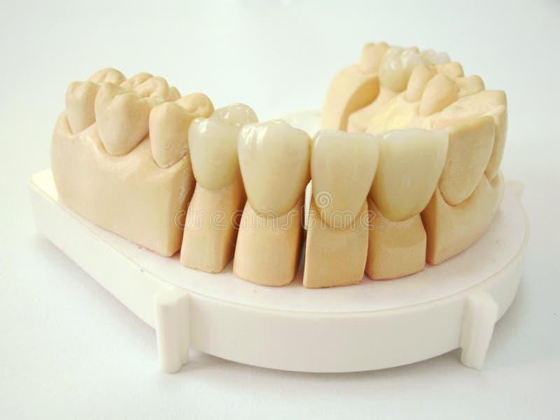 Miembro de la dentadura foto de archivo