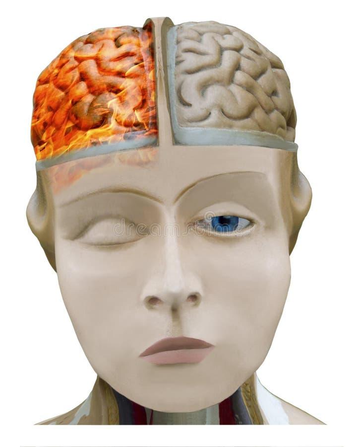 Migrän huvudvärk Brinnande hjärna i flamma av brand royaltyfri bild