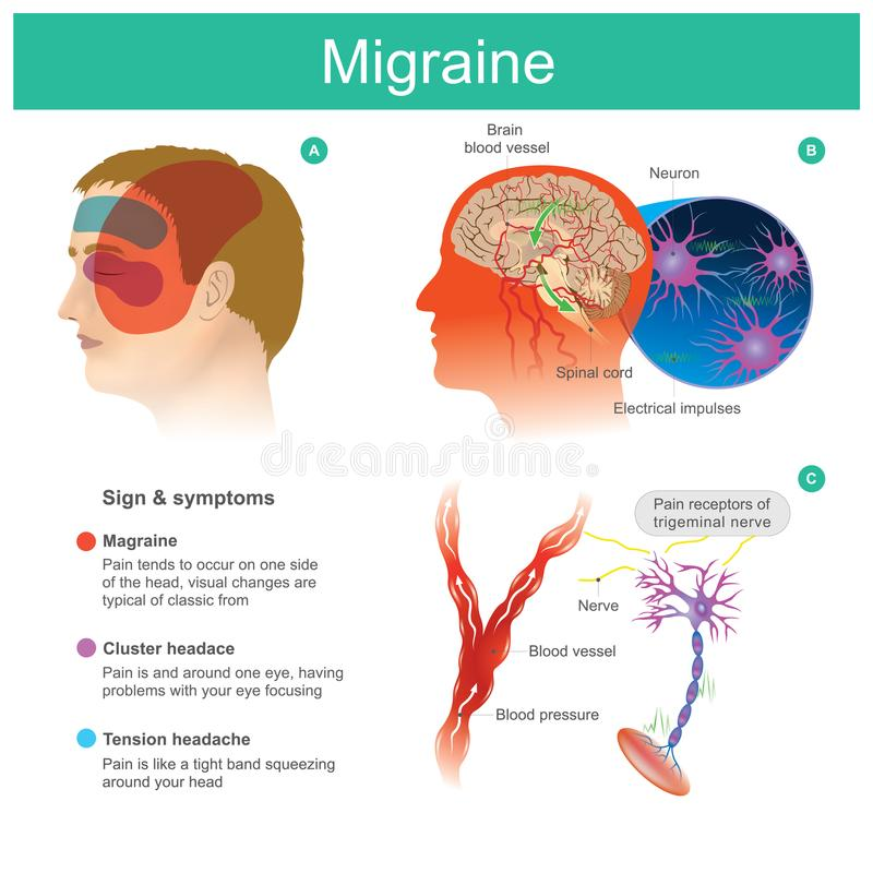 Migraine. Headache, pain, tend cooccur on one side of the headP vector illustration