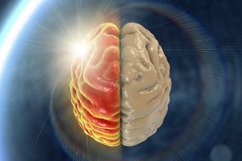 Migrena, hemicrania, medyczny pojęcie royalty ilustracja