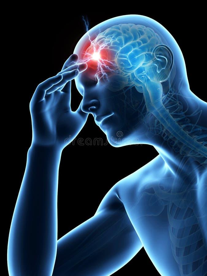 Migrena, migrim/ ilustracja wektor