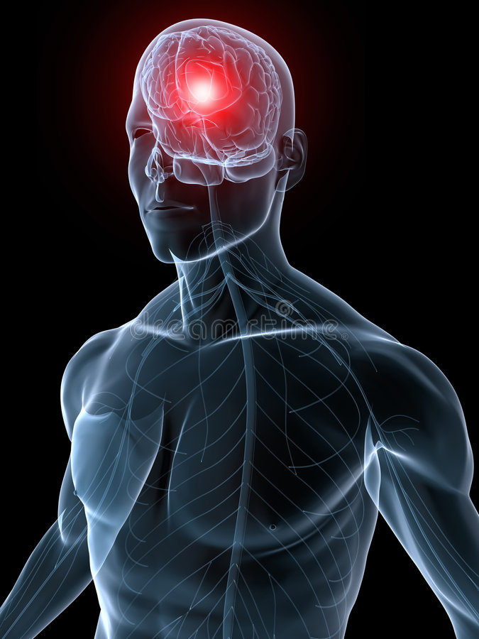migreny migrena royalty ilustracja