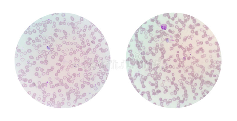 Mikroskopijni widoki cienki krwionośny rozmaz od malarii infekowali pa zdjęcie royalty free