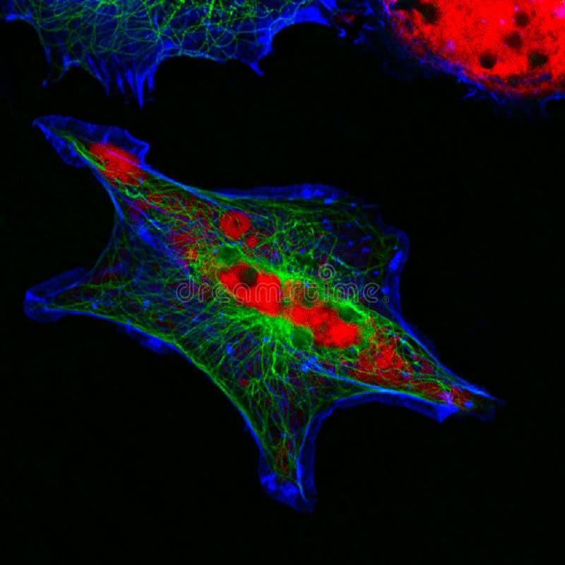 Mikroskopische Ansicht der wirklichen Fluoreszenz von menschlichen neuroblastoma Zellen stockfotos