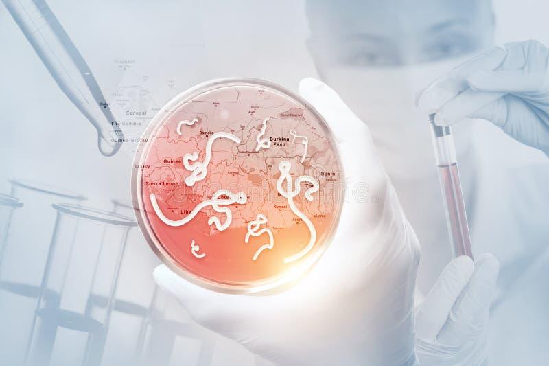 Mikroskopische Ansicht des Ebola Virus stockfotos