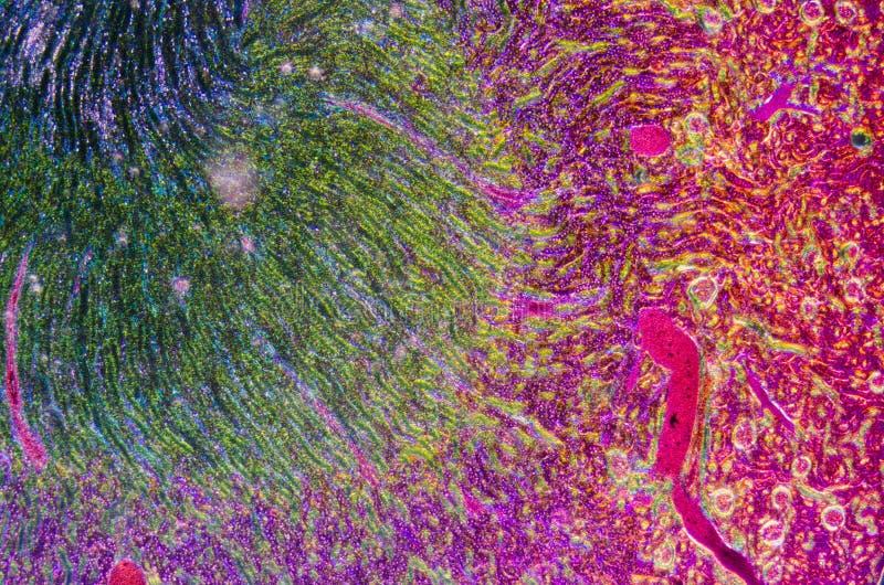 Mikroskopiskt avsnitt av den mänskliga njure arkivfoto