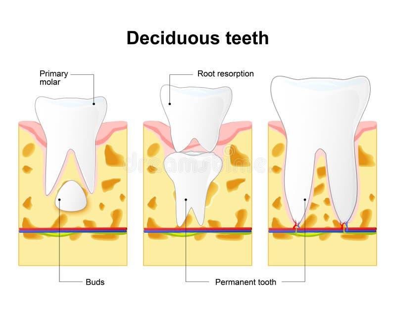 Milchzahn Und Dauerhafter Zahn Prozess Ist Wurzelaufnahme Vektor ...
