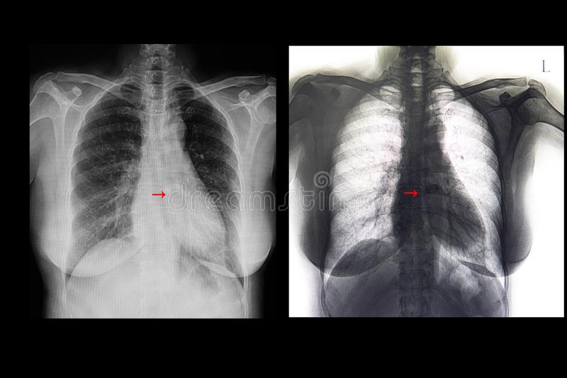 Mild cardiomegaly and valve replacement. A chest xray film of a patient with mild cardiomegaly. Heart valve replacement stock illustration