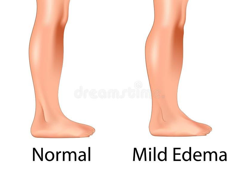 Mild edema with normal leg. Swollen leg versus normal leg vector illustration stock illustration