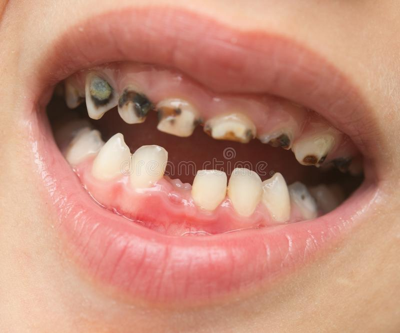 milk tooth royalty free stock photography