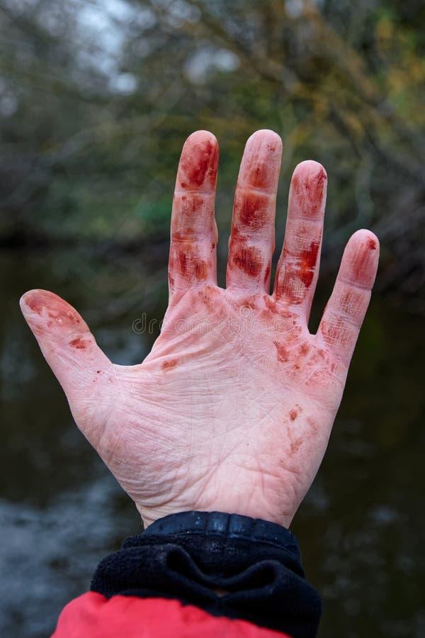 Mindre trauma till handleden, koagulerat blod, vissnad hud arkivbild