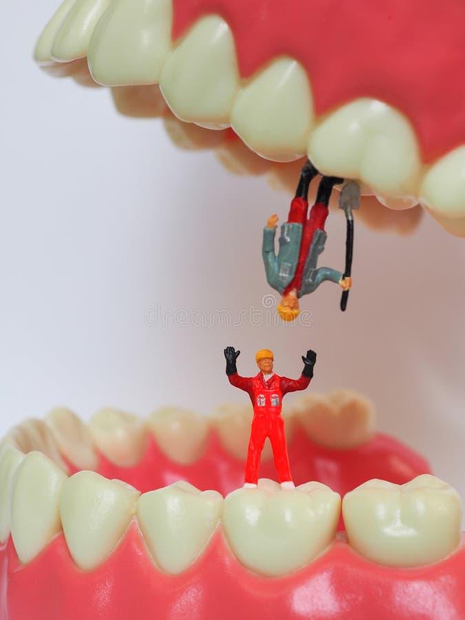 Miniaturarbeitskraft auf Plastikzähnen des entfernbaren Gebisses Zahnmedizinisches h stockfotos