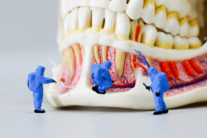 Miniature people scientist at work with dental tooth model. The Miniature people scientist at work with dental tooth model stock photography
