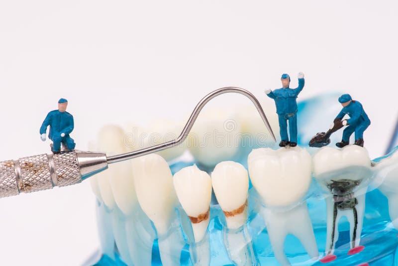 Miniaturleute benutzen sauberen Zahn des zahnmedizinischen Werkzeugs oder zahnmedizinisches Modell stockfotografie