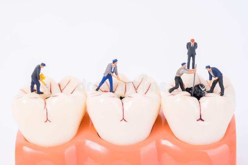 Miniaturleute und zahnmedizinisches Modell lizenzfreie stockbilder