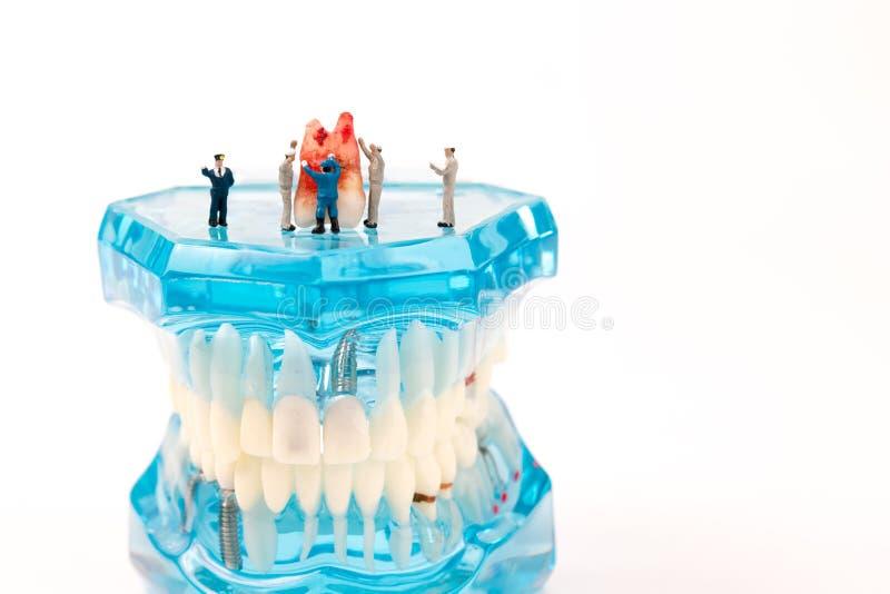 Miniaturzahl Leute mit zahnmedizinischem Modell lizenzfreie stockfotos