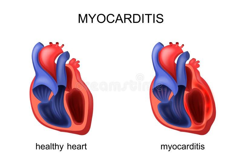 Miocardite sana e malata del cuore illustrazione vettoriale