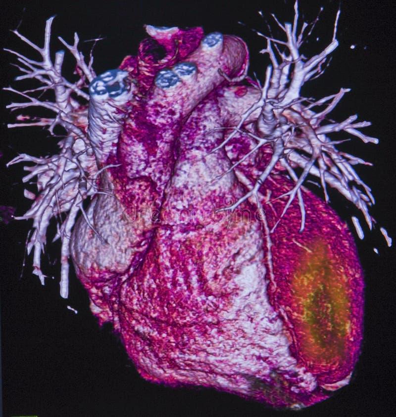 Miokardialny infarct, Obliczająca tomografia obraz royalty free