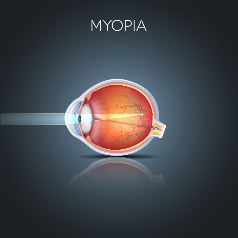 Miopía, ojo miope stock de ilustración