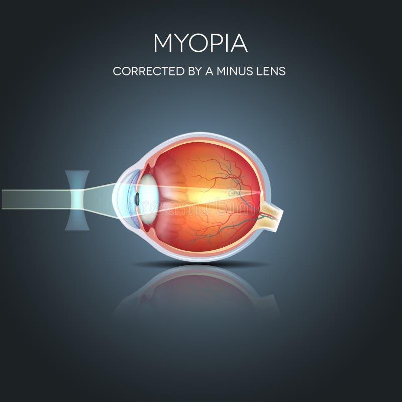 Miopia corretta royalty illustrazione gratis