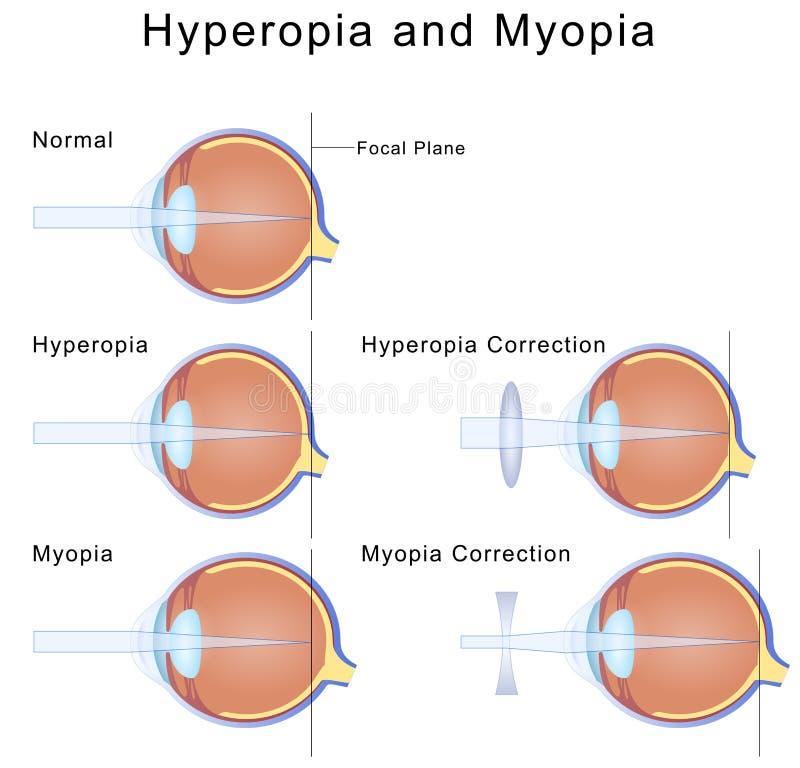 hyperopia több mint 8 dioptria letölthet ingyenes szemészeti könyveket