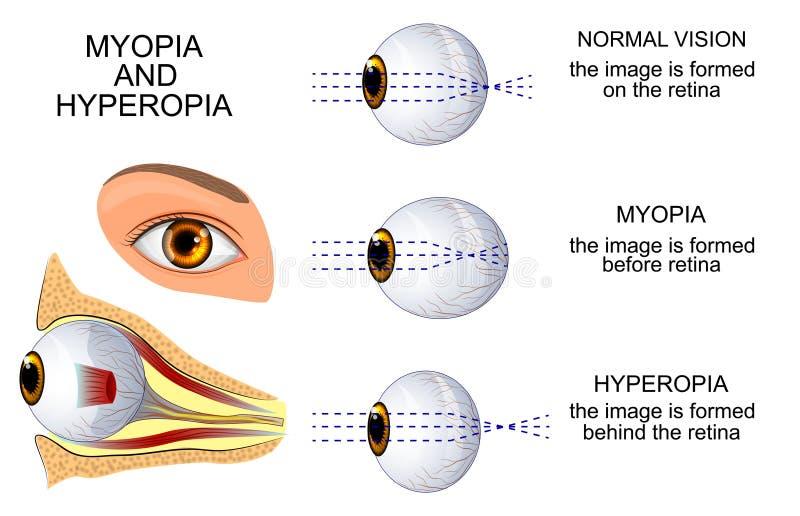 Miopia e Hyperopia ilustração stock
