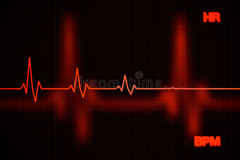 Mislukkingshart Rate Graph Background stock foto