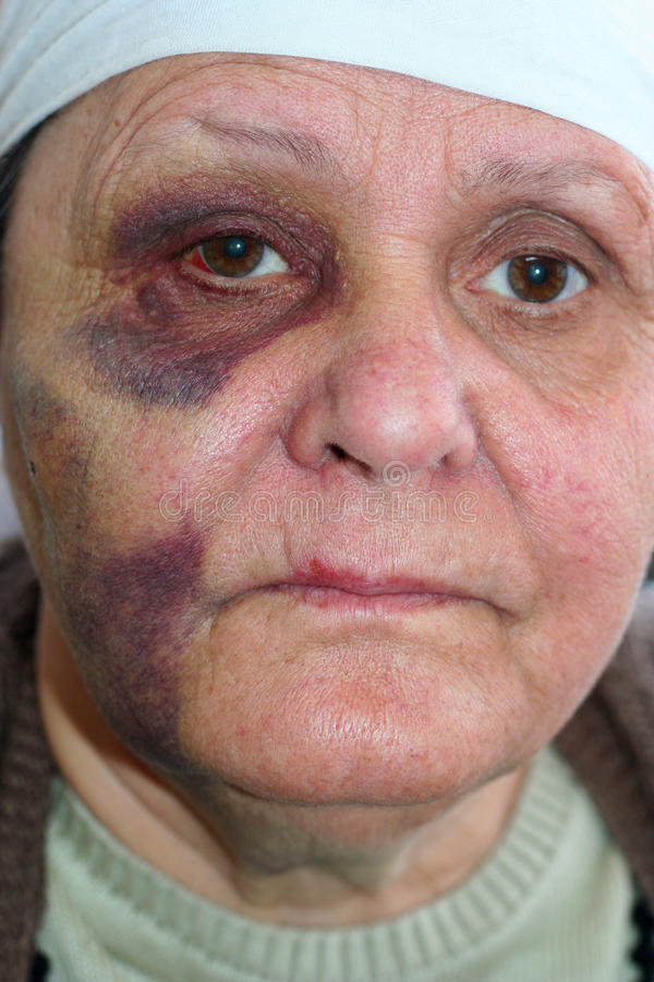 missbrukad ståendekvinna arkivfoto