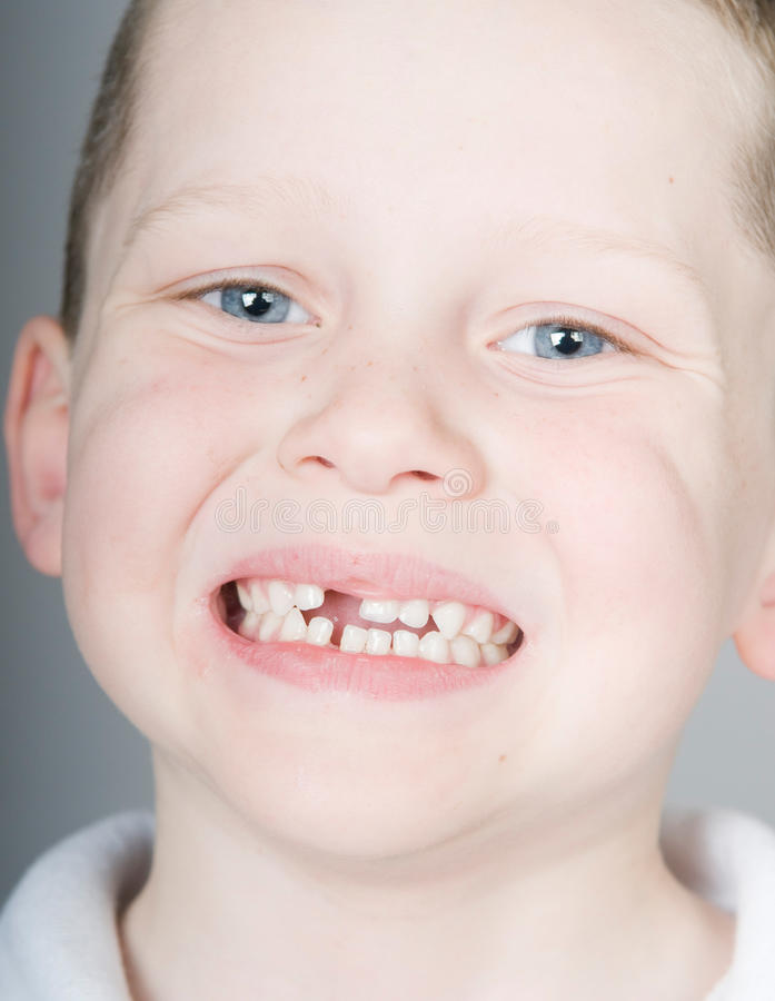 Missing front tooth. Happy boy proud of missing front tooth royalty free stock photo