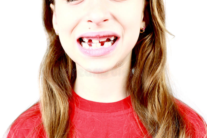Missing Front Tooth. Young girl grimacing, showing off his first missing milk tooth royalty free stock photography