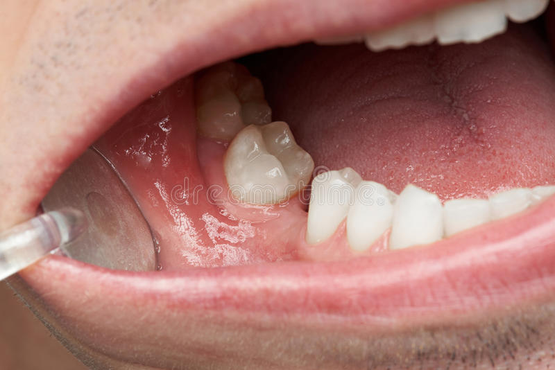 Missing tooth in man mouth. Close-up. Dentist checking missing teeth royalty free stock photo