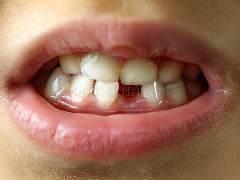 Missing tooth smile kid or children mouth closeup or macro.  royalty free stock image