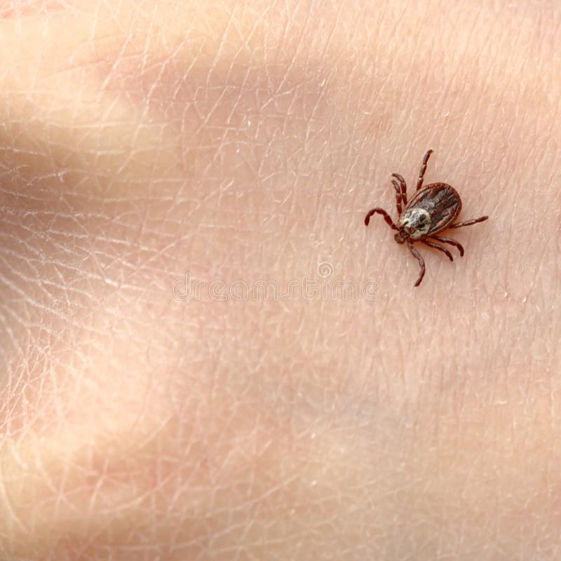 Mite. Encephalitis carrier mite on human hand royalty free stock images