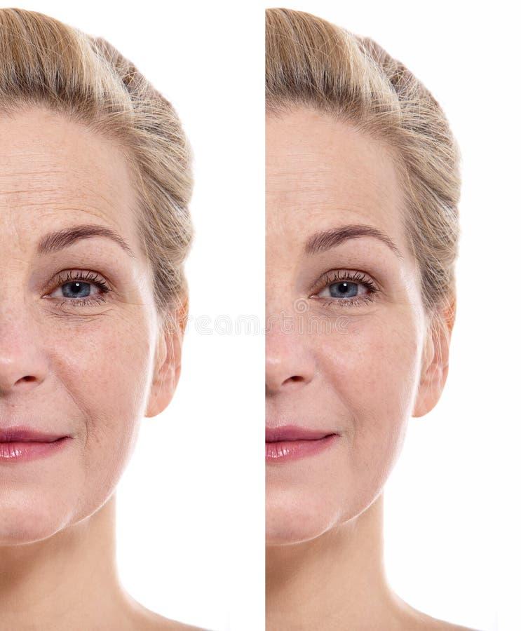 Mitt åldrats kosmetiskt tillvägagångssätt för kvinnaframsida före och efter begrepp isolerad plastikkirurgiwhite royaltyfri bild