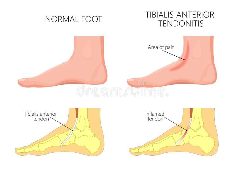 Mittelknöchel injury_Tibialis vorhergehender Tendonitis stock abbildung