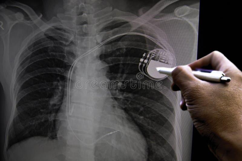 Mjuk och oskarp film för bildbröstkorgröntgenstråle av en patient med pacemaker, också med congestive hjärta och cardiomegaly Vid arkivfoto