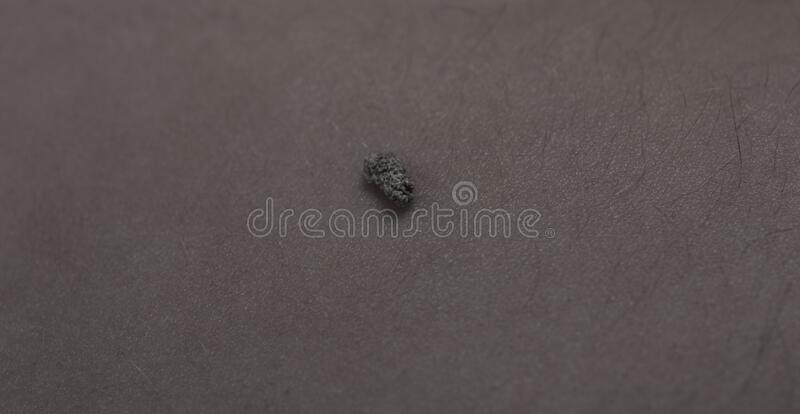 5 mm kidney stone laying on naked belly.  royalty free stock image